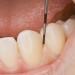 牙周病不舉風險增3倍 恐為陽痿徵兆